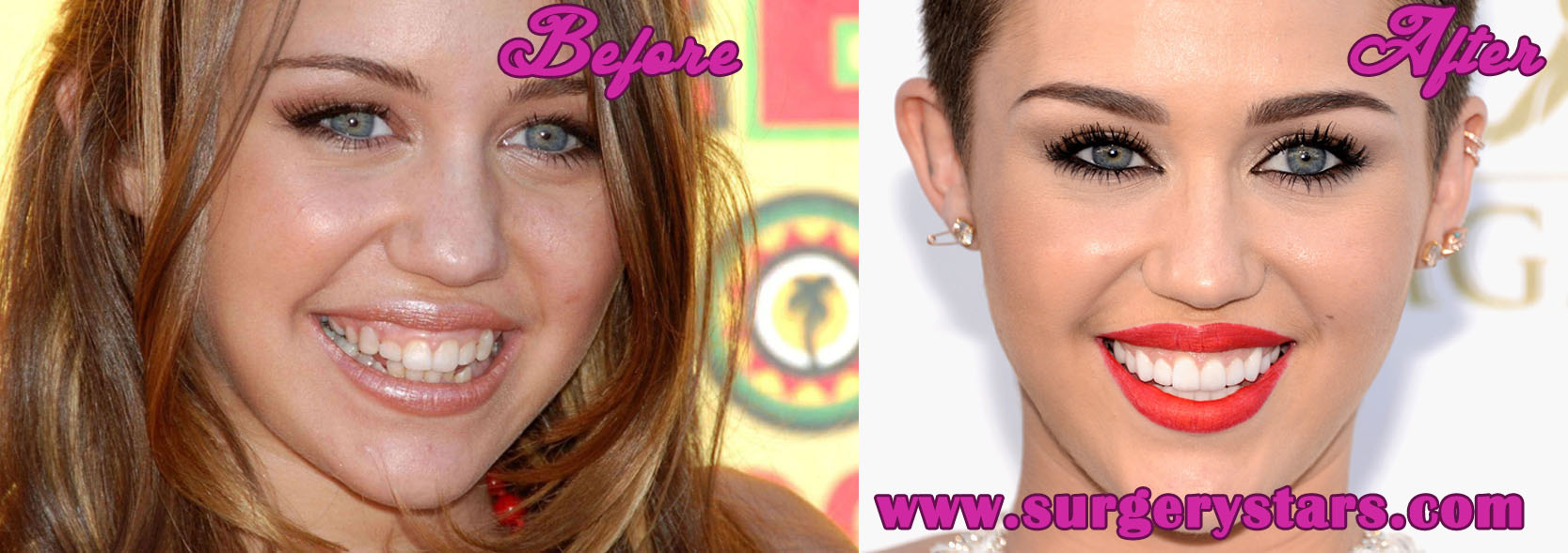 Miley Cyrus Teeth Before and After Pictures