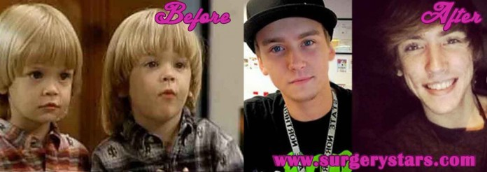 Blake and Dylan Tuomy-wilhoit Before and After Pictures
