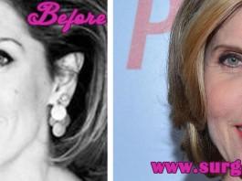 Christine Baranski Plastic Surgery
