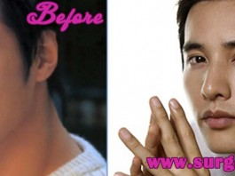Won Bin Plastic Surgery