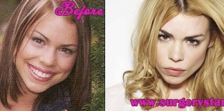 Billie Piper Plastic Surgery l