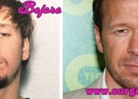 Donnie Wahlberg plastic surgery