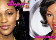 Meagan Good Plastic Surgery