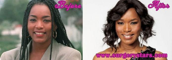 Angela Bassett Plastic Surgery