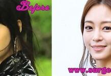 Han Ye Seul Plastic Suegery