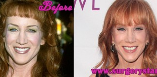 Kathy Griffin Plastic Surgery