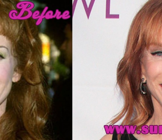 Kathy Griffin Plastic Surgery