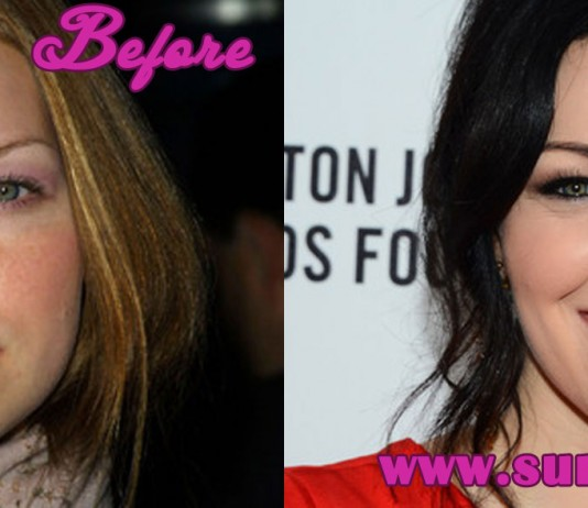 Laura prepon plastic surgery car interior design