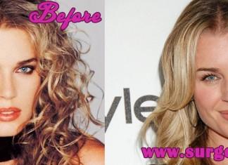 Rebecca Romijn Plastic Surgery