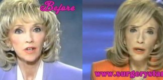 Rexella Van Impe Plastic Surgery