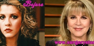 Stevie Nicks Plastic Surgery