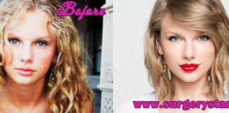 Taylor Swift Plastic Surgery