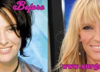 Toni Collette Plastic Surgery