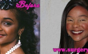 lisa turtle plastic surgery