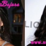 Olivia Munn Plastic Surgery