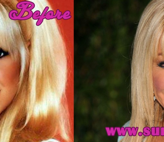 Suzanne Somers Plastic Surgery