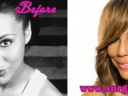 Tamar Braxton Plastic Surgery