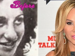Adrienne Maloof Before Plastic Surgery