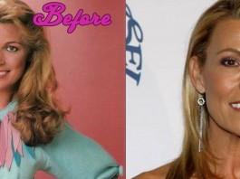 Vanna White Plastic Surgery Before and After Photos
