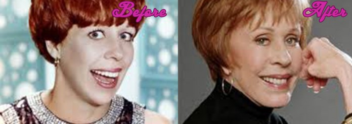 Carol Burnett plastic surgery - Before and After Pictures