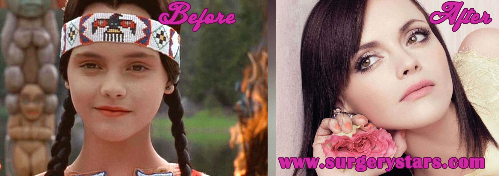 The Christina Ricci Plastic Surgery Story - Bobs and Nose C Cup Breast Celebrities