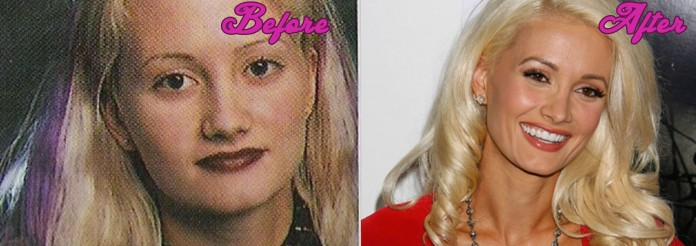Holly Madison Plastic Surgery Pictures