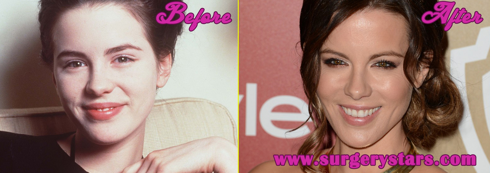 Kate Beckinsale Paltic Surgery