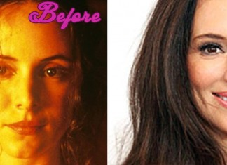 Madeleine Stowe Plastic Surgery, before and after