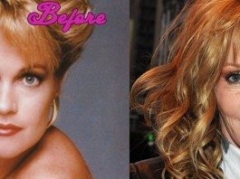 Melanie Griffith's Plastic Surgery Mistakes Pictures