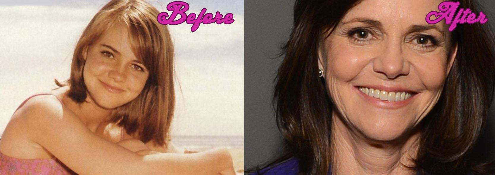 Sally Field Plastic Surgery Pictures