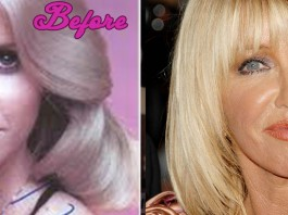 Did Suzanne Somers Have Plastic Surgery?