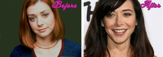 Alyson Hannigan Plastic Surgery Pictures