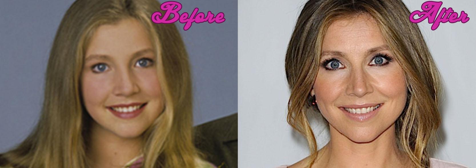 Sarah Chalke Plastic Surgery Photos