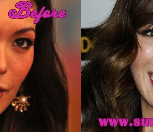 Lindsay Price Plastic Surgery