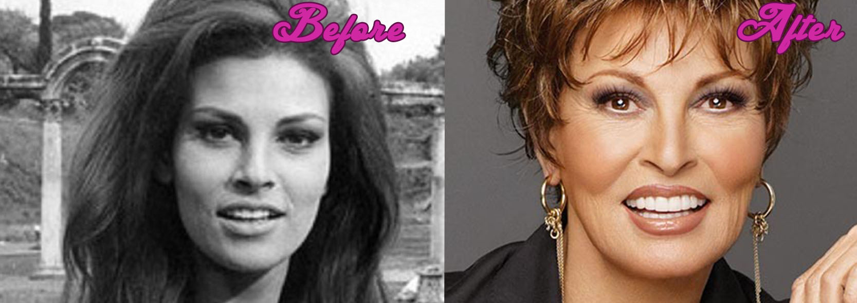 Raquel Welch Plastic Surgery Pics