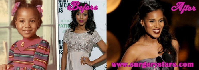 Kerry Washington before surgery