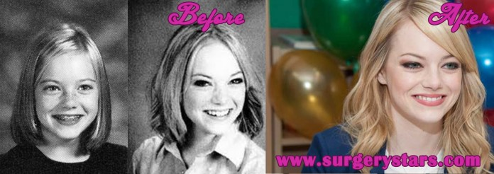 Emma Stone before and after final