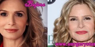kyra sedgwick plastic surgery