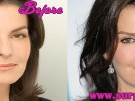 sela ward plastic surgery
