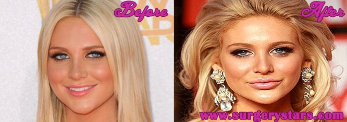 stephanie pratt plastic surgery