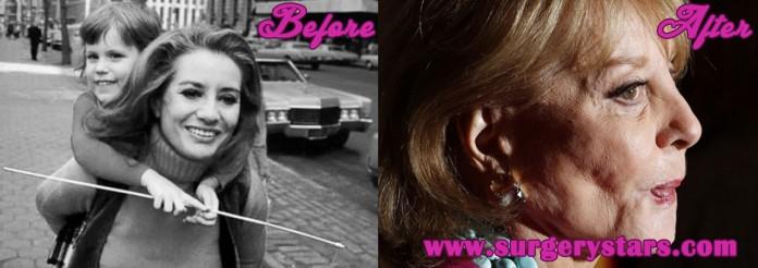 Barbara Walters Plastic surgery