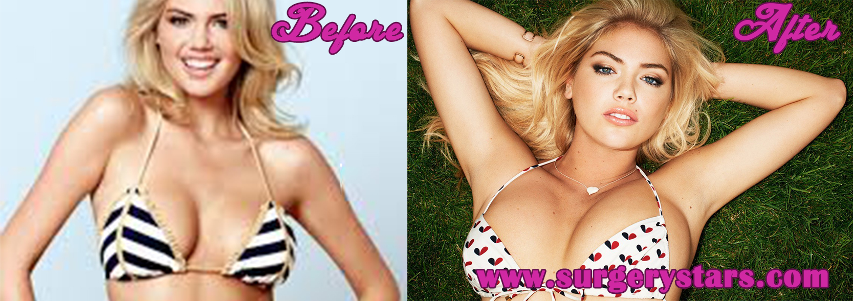 Kate upton breast enhancement
