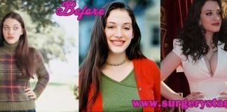 Kat Dennings bra size Plastic Surgery