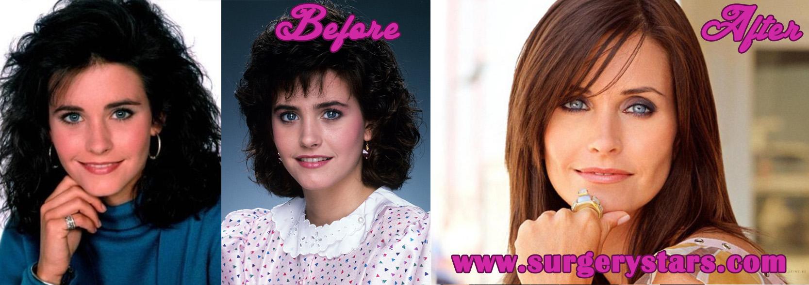 Jennifer Westfeldt Plastic Surgery Before and After Pics