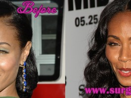 Jada Pinkett Smith Plastic Surgery Before and After Photos