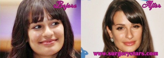 Lea Michelle Plastic Surgery