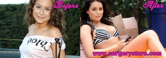 Alexa Vega Plastic Surgery