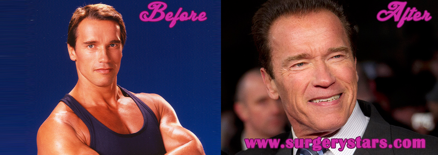 Arnold Schwarzenegger Before and After Plastic Surgery Pictures