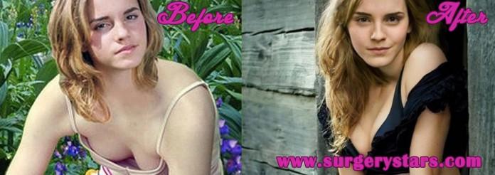Emma Watson Boob