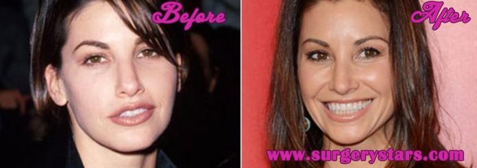 Gina Gershon Plastic Surgery